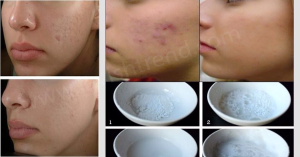baking-soda-and-acne-scars