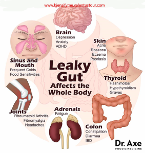 leaky gut sydrome