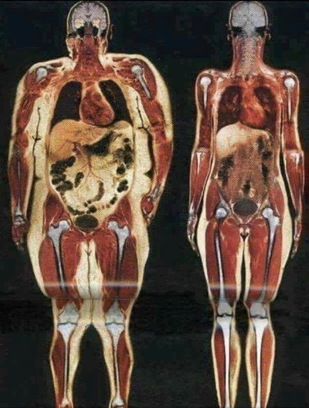 Dangers of Fat around Organ!